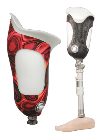 Above Knee (AK) suction socket with laminated fabric light weight frame (left) / Above Knee (AK) suction socket with carbon fiber frame