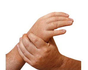 Passive hand prostheses
