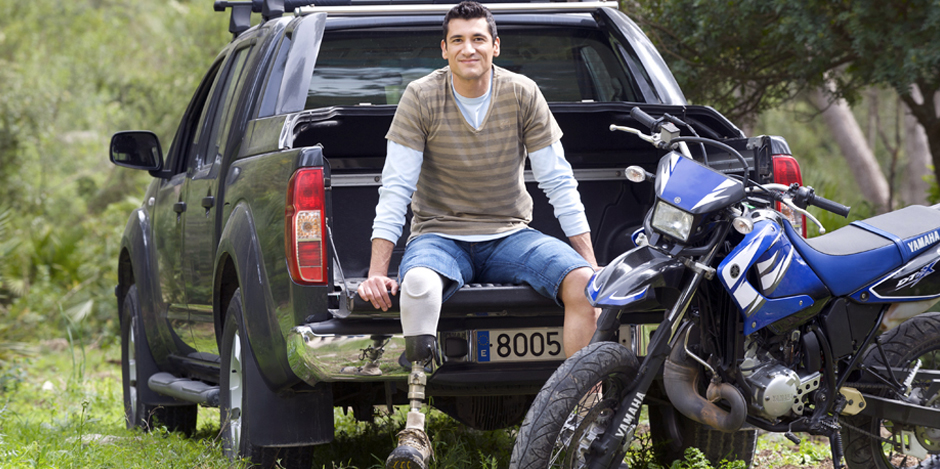 Man with prosthesis outdoor